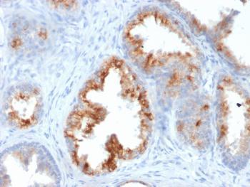 Anti-AMACR / p504S (Prostate Cancer Marker) Monoclonal Antibody(Clone: AMACR/1864)