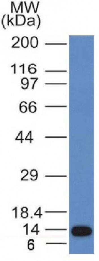 Anti-ALK (Anaplastic Lymphoma Kinase) / CD246 Monoclonal Antibody(Clone: ALK/1031)