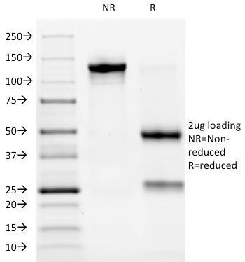 Anti-ALK (Anaplastic Lymphoma Kinase) / CD246 Monoclonal Antibody(Clone: ALK/1032)