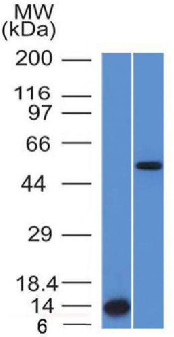 Anti-ALK (Anaplastic Lymphoma Kinase) / CD246 Monoclonal Antibody(Clone: ALK/1503)