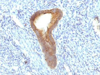 Anti-Alkaline Phosphatase (Tissue-Nonspecific) Monoclonal Antibody(Clone: ALPL/597)
