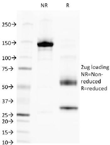 Anti-Alkaline Phosphatase (Tissue-Nonspecific) Monoclonal Antibody(Clone: V17.1)