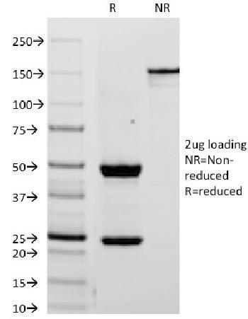 Anti-Alkaline Phosphatase (Placental) / PLAP (Germ Cell Tumor Marker) Monoclonal Antibody(Clone: ALPP/238)