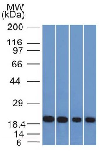 Anti-Ferritin, Light Chain (Node-Negative Breast Tumor Prognostic Marker) Monoclonal Antibody(Clone: FTL/1386)