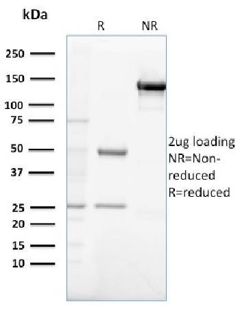 Anti-Gastrin Monoclonal Antibody(Clone: GAST/2632)
