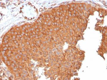 Anti-PAI-RBP1 / SERBP1 / SERPINE1 Monoclonal Antibody(Clone: SERBP1/3496)