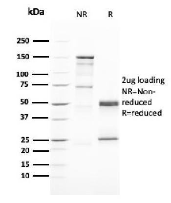 Anti-GATA-3 (Breast and Urothelial Marker) Monoclonal Antibody(Clone: GATA3/2446)