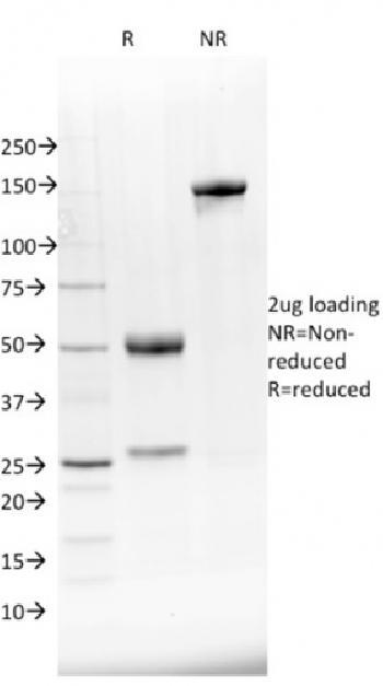 Anti-NKX2.8 Monoclonal Antibody(Clone: NKX28/2548)