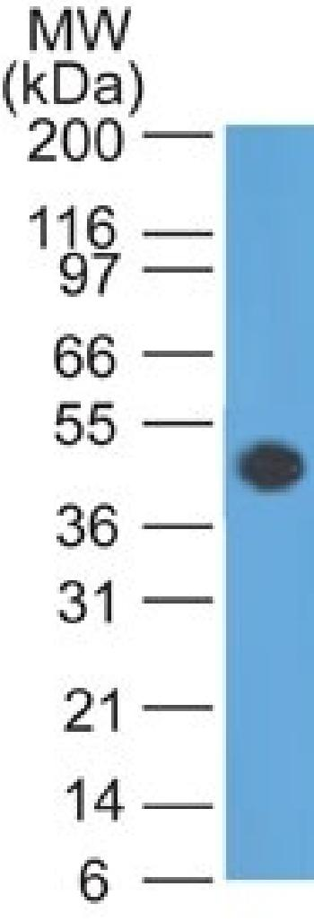 Anti-GFAP (Astrocyte & Neural Stem Cell Marker) Monoclonal Antibody(Clone: GA-5)