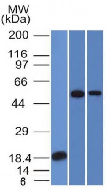 Anti-TOX3 / TNRC9 Monoclonal Antibody(Clone: TOX3/1124)