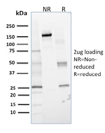 Anti-Lactoylglutathione Lyase Monoclonal Antibody(Clone: CPTC-GLO1-1)