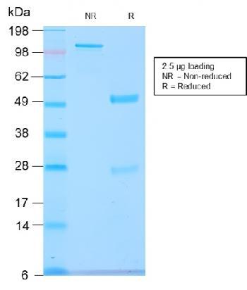 Anti-GnRH-Receptor / LH-RH Receptor Monoclonal Antibody(Clone: GNRHR/2982R)