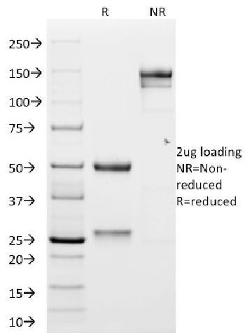 Anti-GP2 (Glycoprotein 2) / ZAP75 Monoclonal Antibody(Clone: GP2/1551)