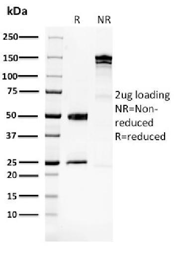Anti-Glucose 6-Phosphate Isomerase Monoclonal Antibody(Clone: CPTC-GPI-1)