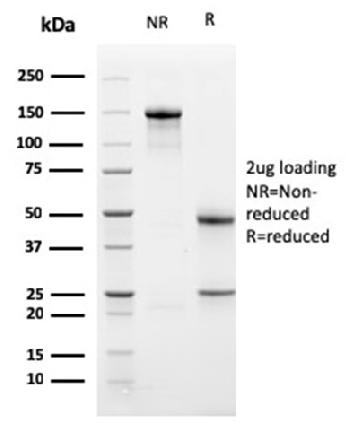 Anti-PD-L1 / PDCD1LG1 / CD274 / B7-H1 (Cancer Immunotherapy Target) Monoclonal Antibody(Clone: PDL1/2741)