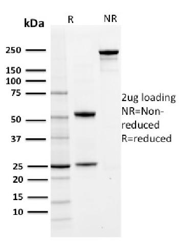 Anti-PD-L1 / PDCD1LG1 / CD274 / B7-H1 (Cancer Immunotherapy Target) Monoclonal Antibody(Clone: PDL1/2742)