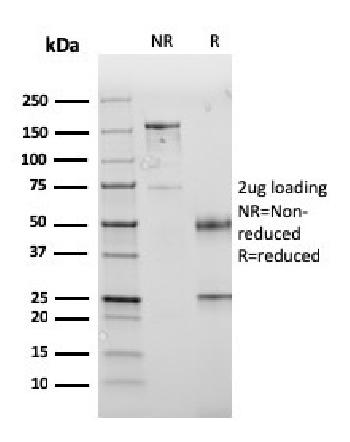 Anti-PD-L1 / PDCD1LG1 / CD274 / B7-H1 (Cancer Immunotherapy Target) Monoclonal Antibody(Clone: PDL1/2745)