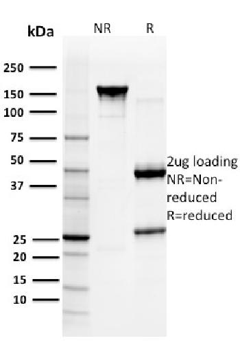 Anti-Glutathione S-Transferase Mu3 (GSTM3) Monoclonal Antibody(Clone: CPTC-GSTMu3-1)