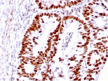 Anti-MSH6 (DNA Mismatch Repair Protein) Monoclonal Antibody(Clone: MSH6/3085)
