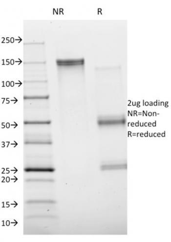 Anti-Annexin A1 / (Hairy Cell Leukemia Marker) Monoclonal Antibody(Clone: ANXA1/1672)
