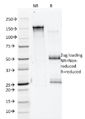 Anti-Annexin A1 / (Hairy Cell Leukemia Marker) Monoclonal Antibody(Clone: 5E4/1)