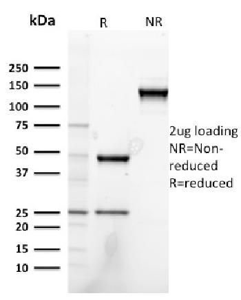 Anti-Heregulin-1 / Neuregulin-1 (Breast and Urothelial Marker) Monoclonal Antibody(Clone: NRG1/2752)