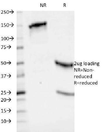 Anti-HLA-ABC (MHC I) Monoclonal Antibody(Clone: 246-B8.E7)