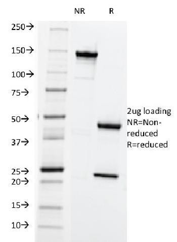 Anti-HLA-ABC (MHC I) Monoclonal Antibody(Clone: SPM419)
