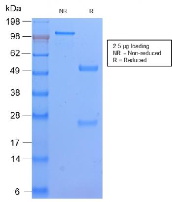 Anti-HLA-DP (MHC II) Monoclonal Antibody(Clone: HLA-DPB1/2862R)