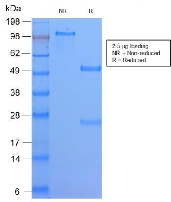 Anti-HLA-DQ (MHC II) Monoclonal Antibody(Clone: HLA-DQA1/2866R)