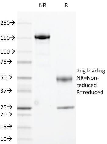 Anti-HLA-DRA (MHC II) Monoclonal Antibody(Clone: 169-1B5.2)