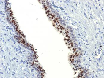 Anti-FOXA1 / HNF3A Monoclonal Antibody(Clone: FOXA1/1514)