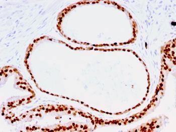 Anti-FOXA1 / HNF3A Monoclonal Antibody(Clone: FOXA1/1516)