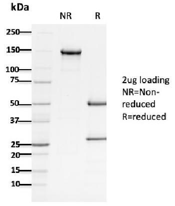 Anti-APC / Adenomatous Polyposis Coli / FAP (Tumor Suppressor) Monoclonal Antibody(Clone: ALi 12-28)