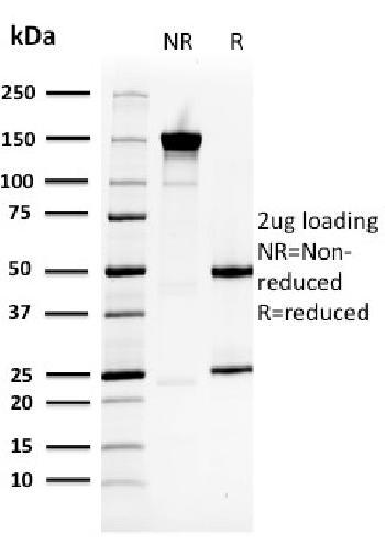 Anti-Heat Shock 27kDa Protein 1 Monoclonal Antibody(Clone: CPTC-HSPB1-2)
