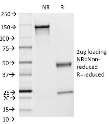 Anti-CD54 / ICAM-1 Monoclonal Antibody(Clone: F4-31C2)