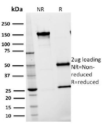 Anti-CD54 / ICAM-1 Monoclonal Antibody(Clone: 15.2)