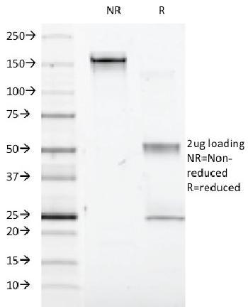 Anti-Interferon alpha-1 (IFNA1) Monoclonal Antibody(Clone: Feb-48)