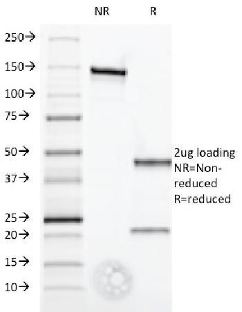 Anti-Interferon alpha-1 (IFNA1) Monoclonal Antibody(Clone: Feb-52)