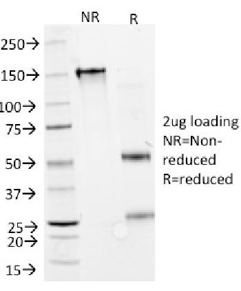 Anti-Interferon alpha-2 (IFNA2) Monoclonal Antibody(Clone: N27)