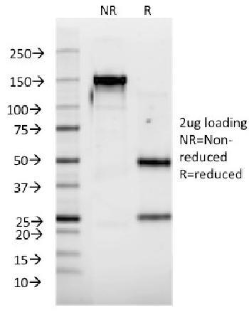 Anti-Interferon alpha-2 (IFNA2) Monoclonal Antibody(Clone: N39)
