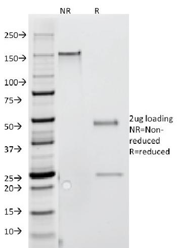 Anti-Interferon gamma (IFNG) Monoclonal Antibody(Clone: G-23)