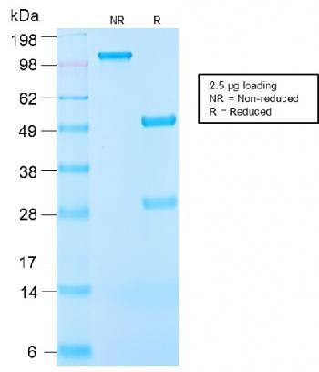 Anti-Insulin-like Growth Factor-1 (IGF-1) Monoclonal Antibody(Clone: IGF1/2872R)