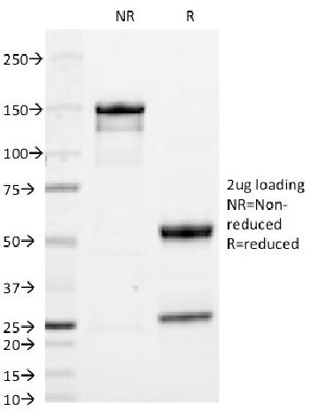 Anti-IgA (Immunoglobulin Alpha Heavy Chain) (B-Cell Marker) Monoclonal Antibody(Clone: HISA43)