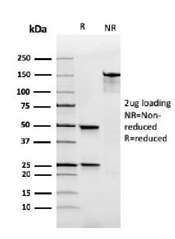 Anti-Immunoglobulin Alpha (IgA) Heavy Chain Monoclonal Antibody(Clone: rHISA43)
