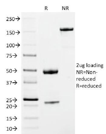 Anti-IgM (Immunoglobulin Mu Heavy Chain) (B-Cell Marker) Monoclonal Antibody(Clone: IM373)