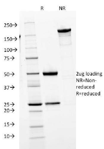 Anti-IgM (Immunoglobulin Mu Heavy Chain) (B-Cell Marker) Monoclonal Antibody(Clone: IGHM/1623)