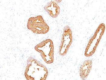 Anti-Prostate Specific Antigen (PSA) Monoclonal Antibody(Clone: A67-B/E3)