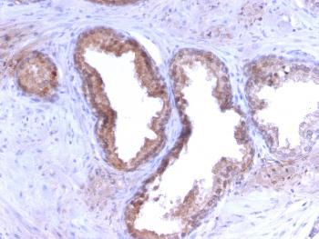 Anti-Prostate Specific Antigen (PSA) Monoclonal Antibody(Clone: KLK3/2871R)