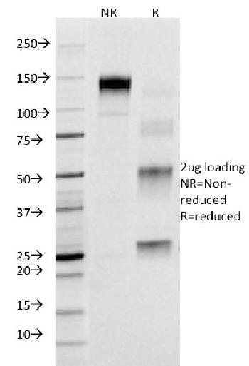 Anti-CD95 / FAS / TNFRSF6 Monoclonal Antibody(Clone: B-R18)